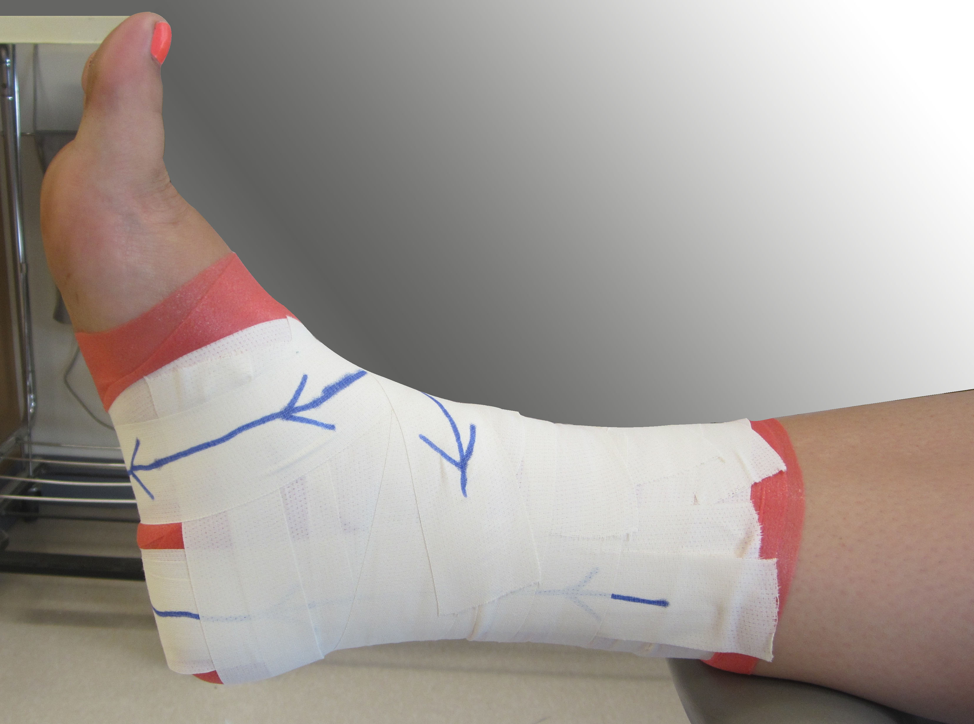 ankle taping more effective than bracing Taping vs bracing research shows that bracing is clearly the winner in the support category it can also be more cost effective and it's much easier for an athlete to apply a brace, than to tape that injured ankle, knee or hand.